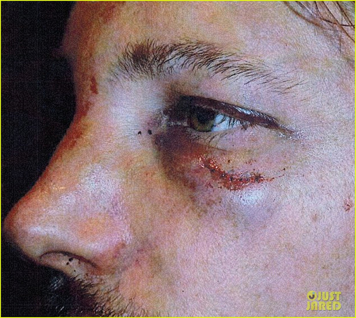 gabriel aubry black eye bloody face revealed 062764616