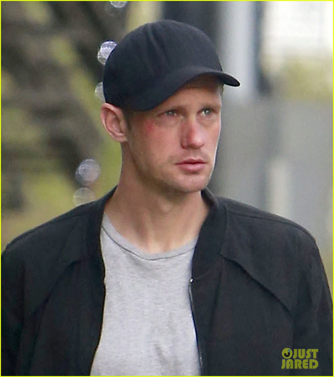 alexander skarsgard bruised eye in los angeles 022826970