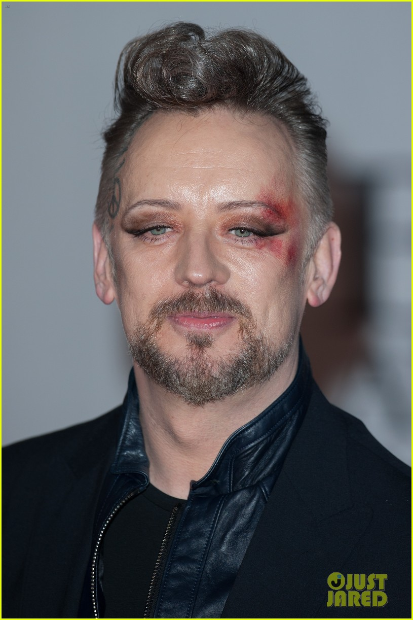 boy george attends brit awards with bruised bloodied eye 093056390