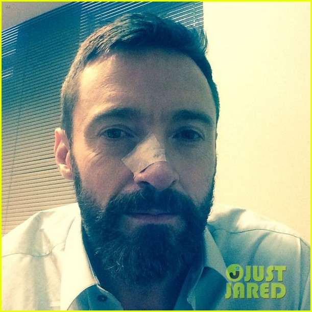 hugh jackman doctors find more cancer on his nose3108848