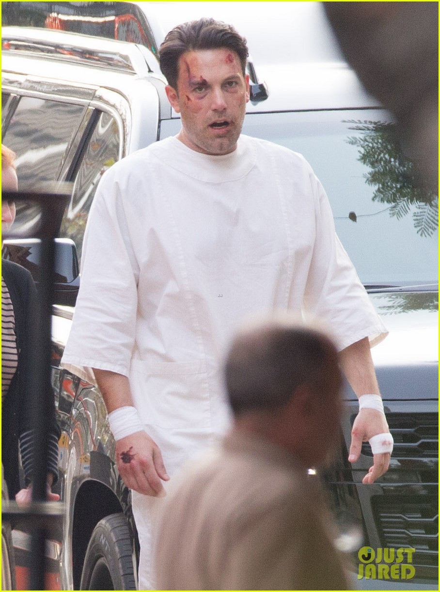 Ben Affleck Wears a Hospital Gown While Bloody & Beaten: Photo ...