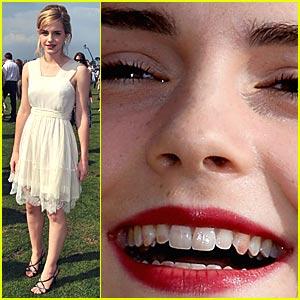 Emma Watson Has Lipstick Teeth