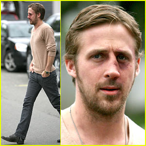 Ryan Gosling Gets A Black Eye