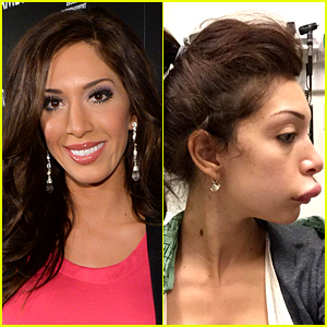 Teen Mom's Farrah Abraham Shows Off Botched Lip Injections