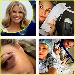 Christie Brinkley Hospitalized After Trying to Save a Bird on Vacation