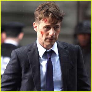 Ben McKenzie Is Bloody On Set After Baby News Reveal