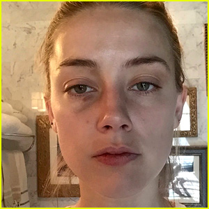 Amber Heard's Injuries Seen in New Photos, Allegedly From Johnny Depp Domestic Assault